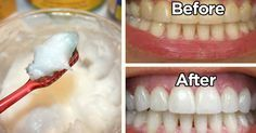 Natural Teeth Whitening That Works Like A Charm   The WHOot