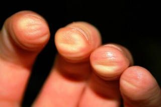 6 FINGER PAIN TIPS -- perfect for guitar tips. This will be helpful on days I…