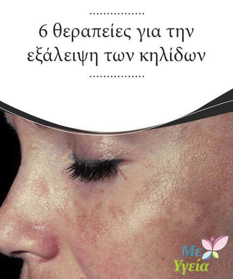 6 θεραπείες για την εξάλειψη των κηλίδων Σε πολλές περιπτώσεις, οι πανάδες φεύγουν από μόνες τους αλλά #ορισμένες φορές η εξάλειψη των #κηλίδων μπορεί να είναι δύσκολη υπόθεση και απαιτεί διάφορες #θεραπείες. #Ομορφιά
