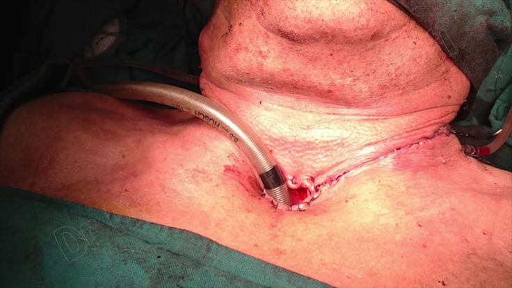 Laryngectomy by Dr Majid Ahmed Talikoti