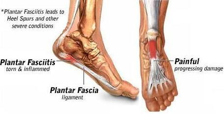 "Got Foot pain? Plantar Fasciitis? Jammed ankles? Plantar Fasciitis and other foot problems can be FIXED with the FasciaBlaster® !! Learn the techniques! We've gotten MANY reviews about this technique providing instant relief! Broken into its parts, ""plantar"" is the bottom surface of the foot. It's just the anatomical region's name. ""Fascia"" is the anatomical region of the #pain, meaning ""within the fascia"", and ""itis"" means swollen. So, by the very definition of the words Plantars Fasciitis…"