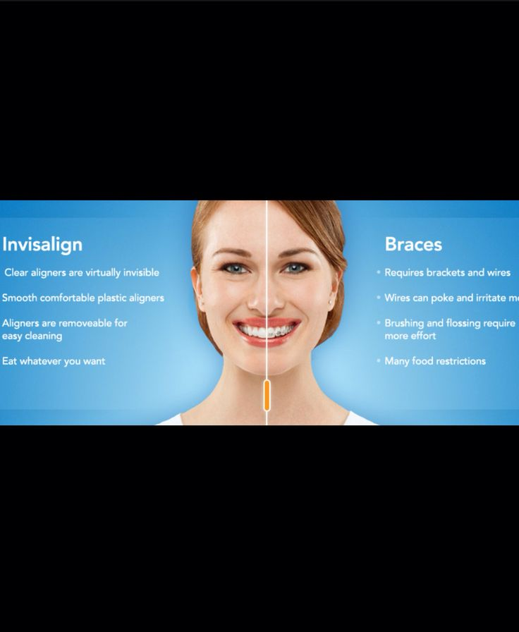 Invisalign TEETH STRAIGHTENING  Http://www.infinitydental.ca