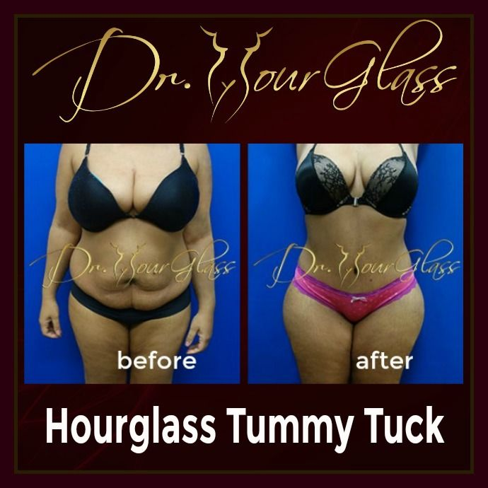 This patient is too tired to try more diets and exercise program as she went through a lot of them so she found out an effective method to achieve her goal. Well, she underwent the famous Hourglass Tummy Tuck procedure by Dr. Cortes. Here's her sexy result: