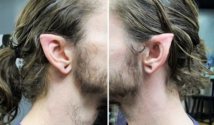 ear points by Brian Decker, healed 4-5 years. | Body Art ... Ear Pointing Healed