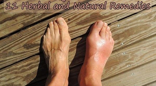 Getting Over Gout: 11 Herbal and Natural RemediesA M