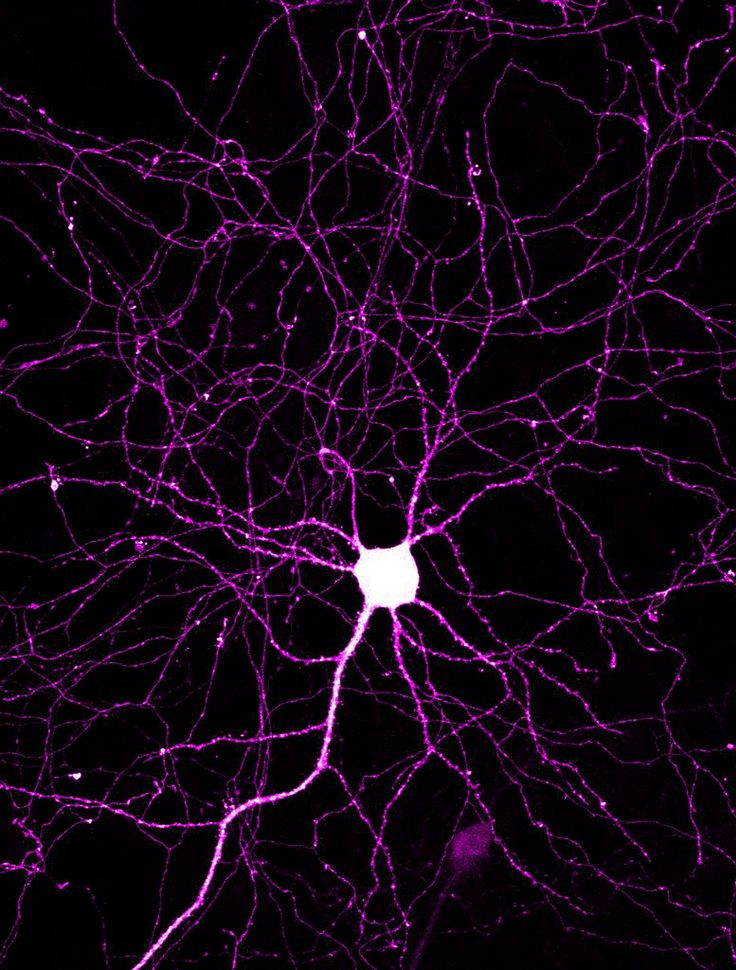 The axons and dendrites of a cortical neuron.