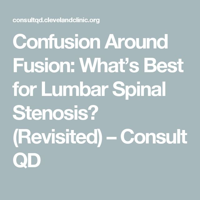Confusion Around Fusion: What's Best for Lumbar Spinal Stenosis? (Revisited) – Consult QD