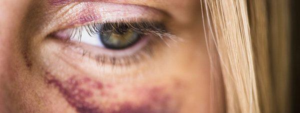 """La violencia contra la mujer, un """"escandaloso drama"""" de nuestro tiempo http://www.guiasdemujer.es/st/violenciadegenero/La-violencia-contra-la-mujer-un-escandaloso-drama-de-nuestro-tiempo-2089"""