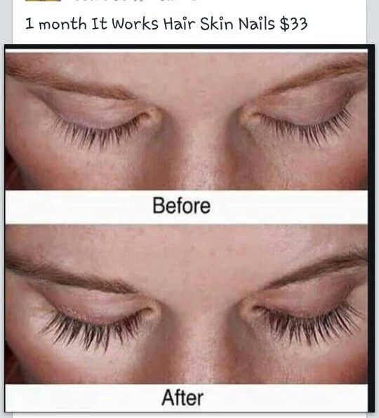 Eyes are the windows to your soul!! Eyelashes grow long and full with Hair, Skin, and Nails! Call Becca at 6613763683 Www.fabulousandfit.myitworks.net