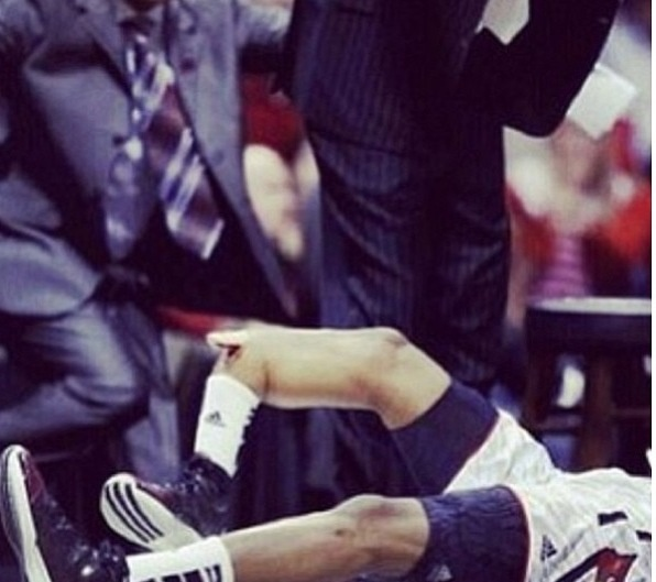 Pray for Kevin Ware. He broke his shin in half at the Louisville vs. Duke game tonight. It's going to be a hard rehab.