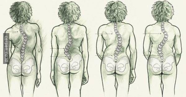 Sakit punggung memang tidak enak, apalagi kalau kamu sudah bermasalah dengan tulang belakang, setiap orang mengalami res...