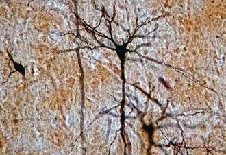 Los tejidos animales. tejido nervioso (neuronas)
