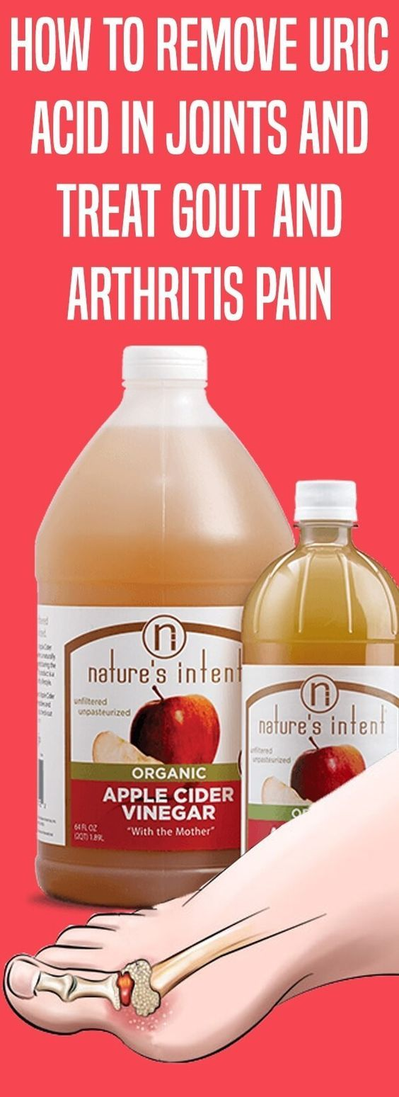 How To Remove Uric Acid In Joints & Apple Cider Vinegar.....