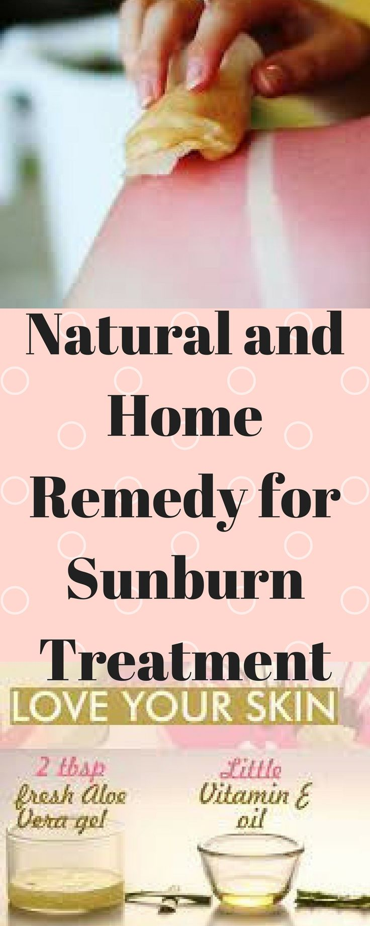 remedy-sunburn-   treatment/