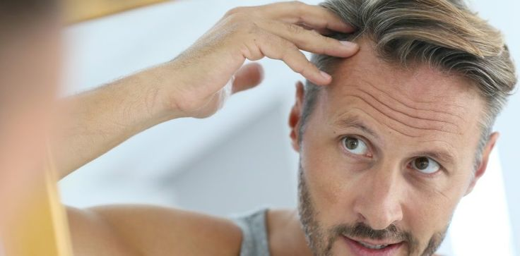 Do Genes Cause Hair Loss? Read More: https://buff.ly/2zMFcUd #HairLoss #MCANHealth