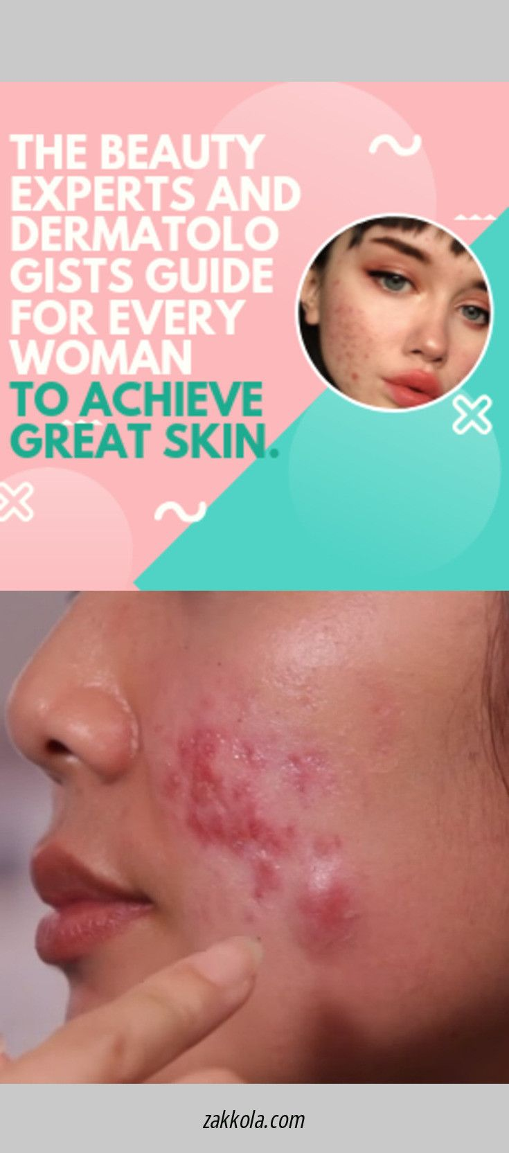 Read information on acne. Simply click here to ge…
