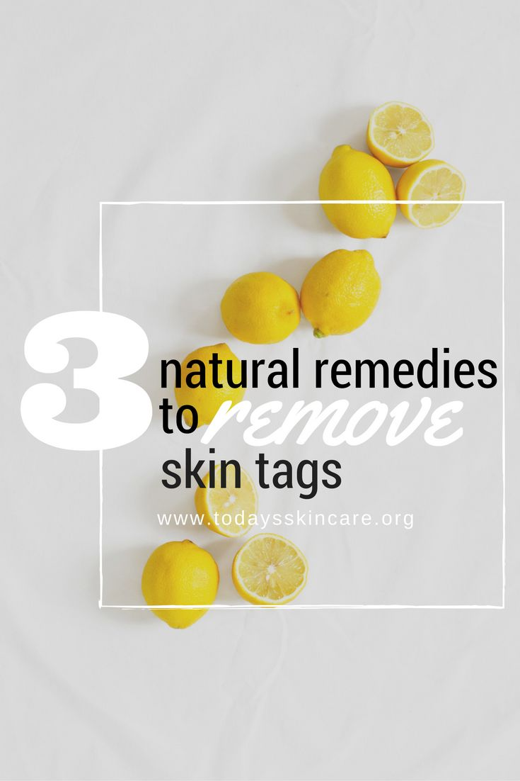 Let's be honest: no one loves skin tags...but how to remove them? Check out this article to learn what skin tags are, how to safely get rid of them, and 3 natural remedies that you can make at home! ----->
