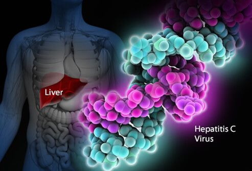 An illustration showing the liver in the human body and the hepatitis C virus.