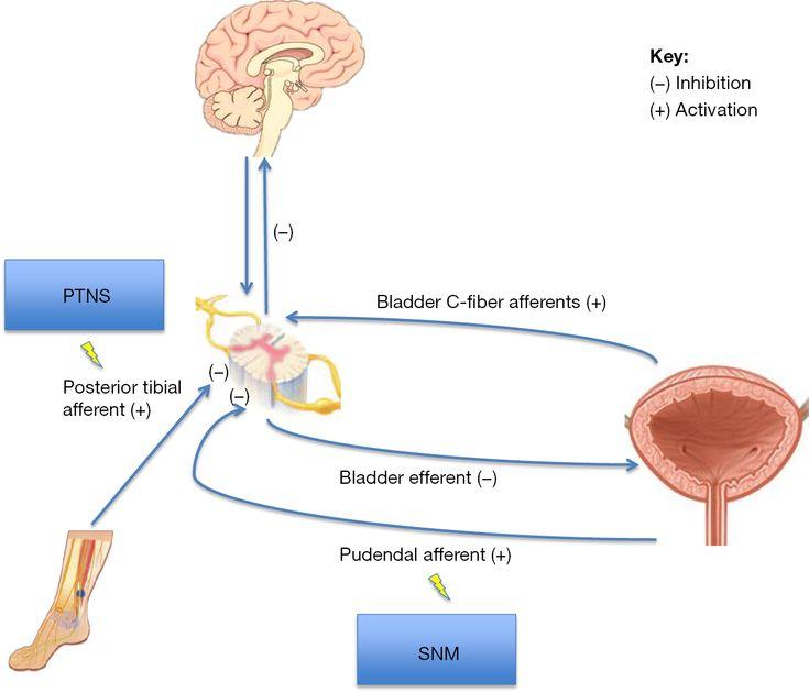 Neuromodulation in neurogenic bladder sanford
