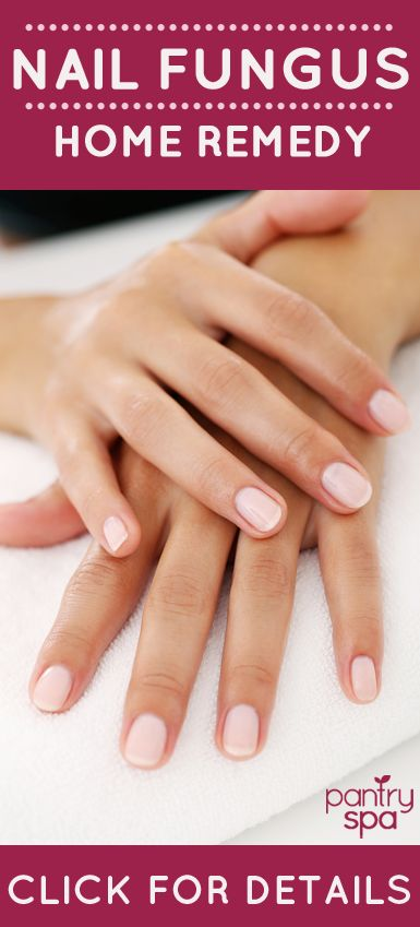 Who knew that putting a little Vicks VapoRub on your nails could remove fungus?! This really works!!