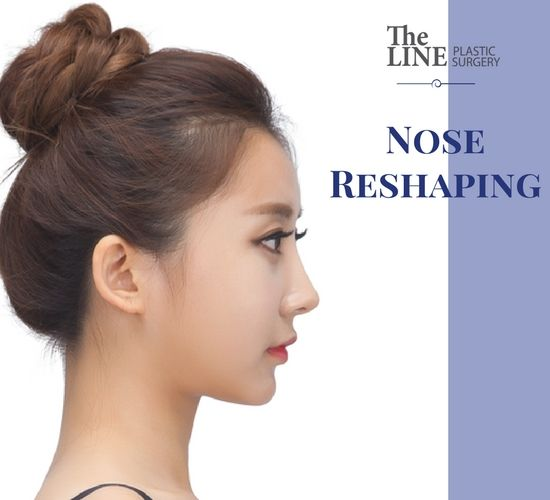 Nasal tip surgery is a simple way to heighten the nasal tip with inserting the ear cartilage. To make the tip higher, put the alar cartilage together or set up a pillar. If proceeding together with columella nasi surgery, in this #nose_reshaping surgery it looks much better and more natural as nostril size and the height of the nasal tip are in harmony with each other.