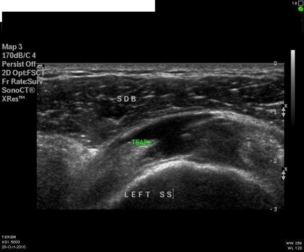 supraspinatus-tear-full