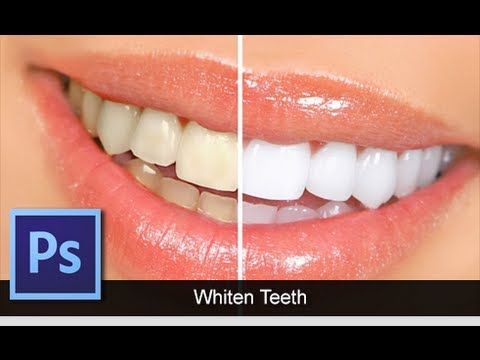This tutorial teaches you how to lighten visible yellow teeth in a picture.