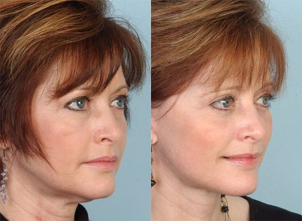 eyelid surgery seattle cost eyelid surgery seattle cost
