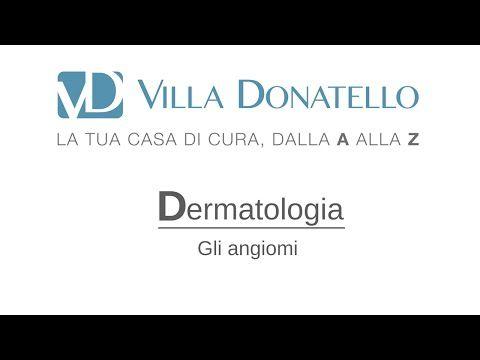 Gli Angiomi - Prof. Paolo Bonan - Dermatologia - Casa di Cura Villa Donatello - YouTube
