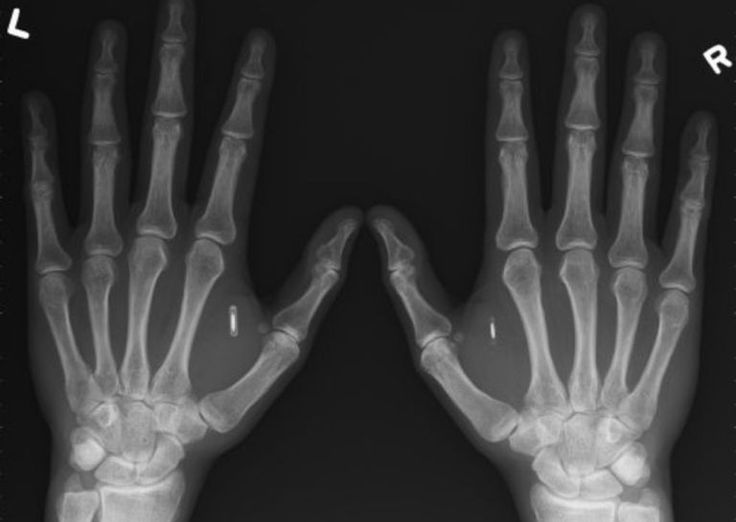 Information Implants: A New Smart Device?| Interesting Engineering. Recently, the number of people using radio frequency identification (RFID) implants has doubled. Could these chips be the new breakthrough?