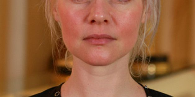 6 Beauty Tips For Gals With Rosacea
