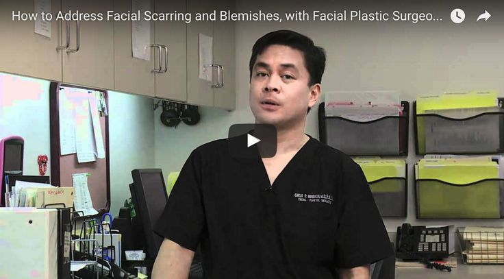 Scar Removal Treatments