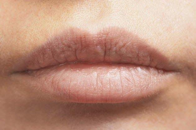 Remedio natural para labios secos - Vida Lúcida