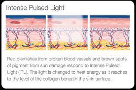 Lumenis IPL has been trusted by millions of women and men around the world as a successful treatment for the following: • Age Spots • Sun Spots • Freckles • Birthmarks • Rosacea • Broken Capillaries • Hair Removal • Skin Rejuvenation / Photofacial • Melasma • Veins / Unwanted Blood Vessels Lumenis Intense Pulsed Light. The safe, simple approach to more beautiful skin. Schedule Appointment today Doctors Weight Loss & Advanced Laser Center (770) 535-0066