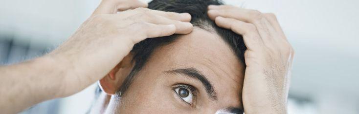 Tratamiento de la calvicie - Actualmente los trasplantes de cabello son frecuentes.  El primero de estos tratamientos consiste en hacer injertos de cabello, con anestesia local, extrayendo una tira del cuero cabelludo, que después se fragmenta en pequeños injertos constituidos por uno o varios pelos. Por su parte, con la técnica FUE se extraen microinjertos constituidos por entre 1 y 4 folículos que directamente pueden ser injertados en la zona donante.