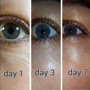 After only 7 days of using the Younique Eye Lift Serum. http://www.youniqueproducts.com/TrishKaehne/party/3670878/view