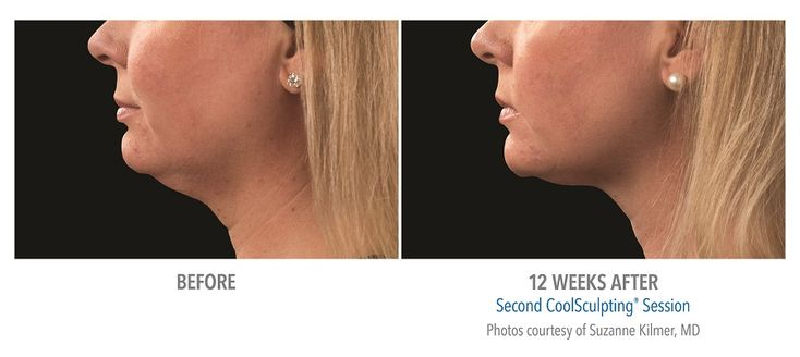 CoolSculpting: A non-invasive alternative to liposuction for getting rid of a double chin.