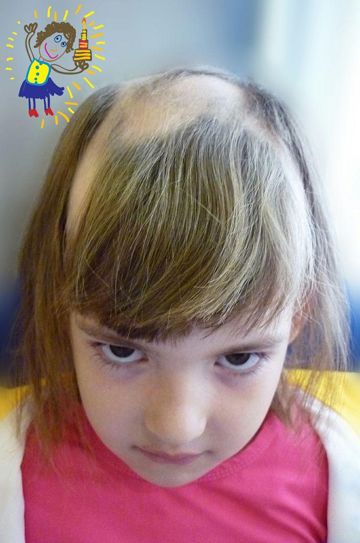 Alopecia areata in children. Painful childhood! Alopecia