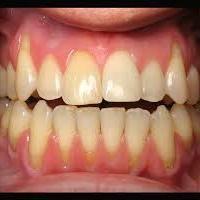 Jak na ustupující dásně: nenechte to dojít až do bodu, kdy vám vypadají zuby | OSUD.cz