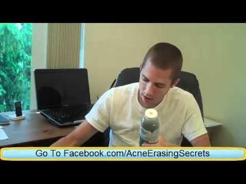 Acne Free Diet clear-skin-acne-treatment-videos