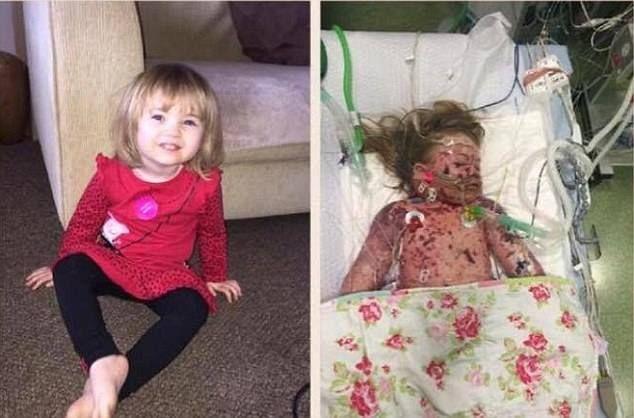 """""""Faye Burdett era una bimba di due anni bellissima ed in perfetta salute. La vedete sana nella foto a sinistra. A destra, purtroppo, la vedete poco prima della festa di San Valentino, giorno …"""