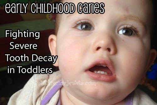 Director Jewels: Addie's Teeth: Early Childhood Caries & Fighting Severe Tooth Decay in Breastfed Toddlers #toothdecay #teeth #earlychildhoodcaries #curetoothdecay #healtoothdecay