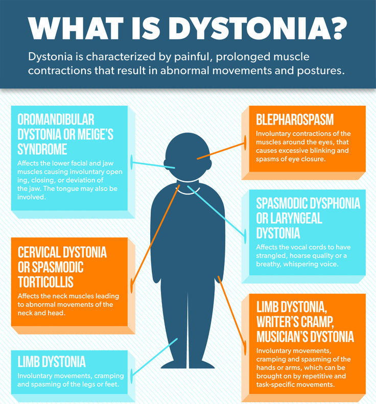Topic | Parkinson's Disease & Dystonia Information