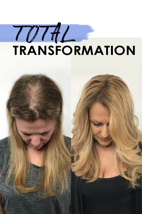 When clients experience #hairthinning, balding or Alopecia on top of the head or around the hair line, it's about a lot more than fine hair. Clink the link to learn more about this #salon solution for hair thinning. #hairextensions #Hairdreams