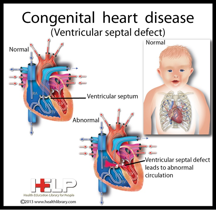 Congenital Heart Disease. Both Kiely and Colby have VSD ...