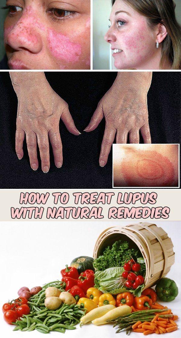 How To Treat Lupus With Natural Remedies Lupus Awareness Natural