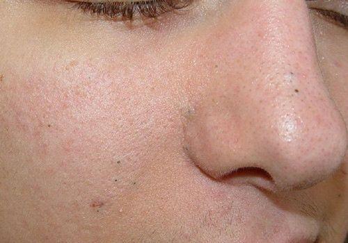 Hautprobleme: Naturheilmittel gegen schwarze Mitesser, Warzen und Altersflecken