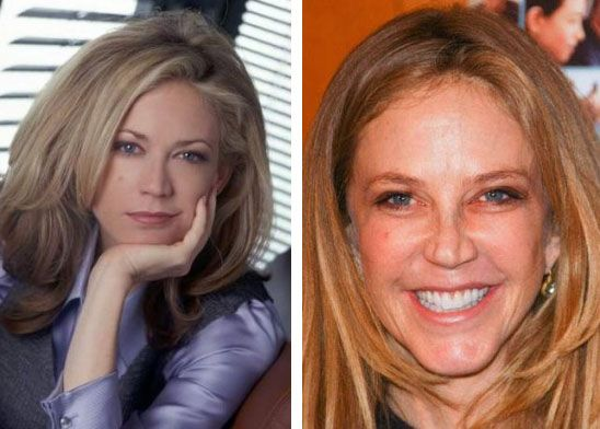 Celeb Surgery Ally Walker Before After #PlasticSurgery