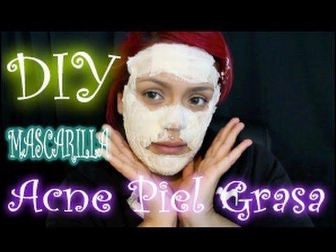 DIY Mascarilla para el Acne y piel Grasosa Hola mis sirenitas! En este video les estare mostrando como hacer una mascarilla casera para el Acne y piel grasos...