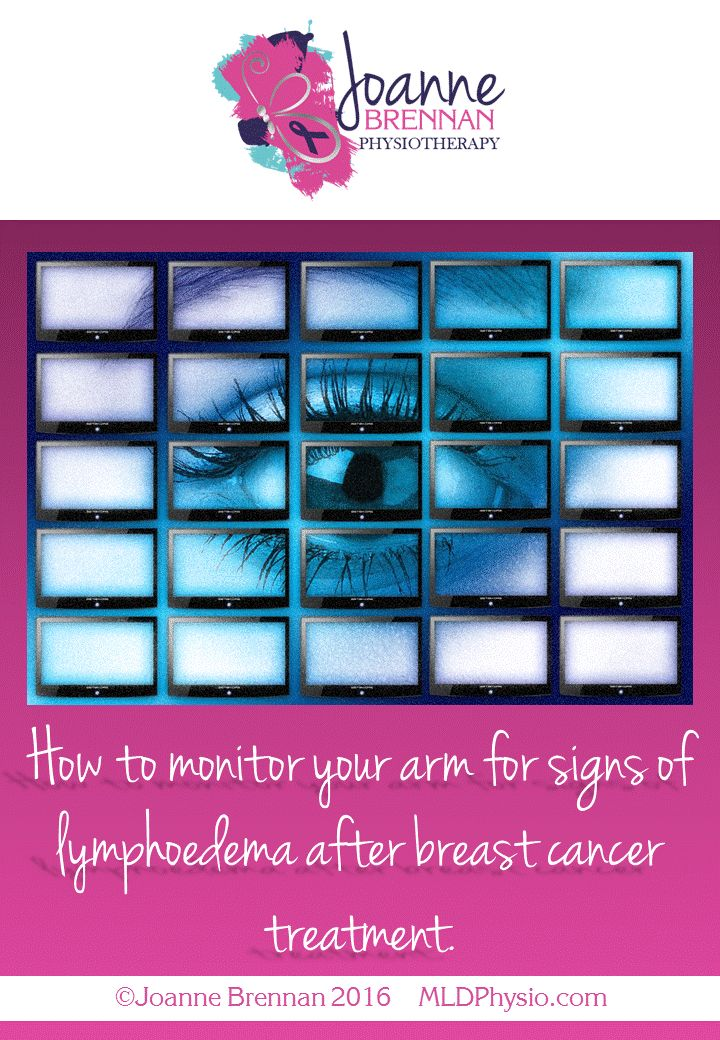 If you have had treatment for breast cancer that involved the removal or radiation of lymph nodes in the armpit then you are at risk of developing lymphoedema. Lymphoedema is swelling in the arm b…